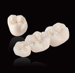 Ceramic crowns and bridges by Dr. Dean Saiki, DDS in Oceanside, CA