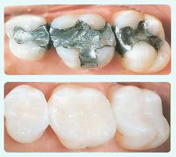 Composite fillings at Beachside Dental in Oceanside, CA