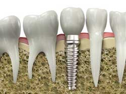Dental implants at Beachside Dental in Oceanside, CA