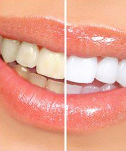 Teeth whitening at Beachside Dental in Oceanside, CA